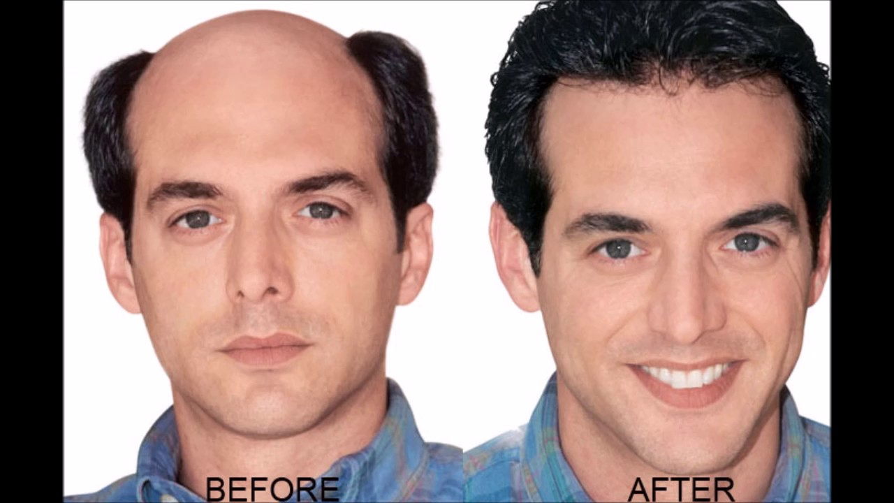 Onion Juice Cure Hair Loss And Promote Hair Regrowth How