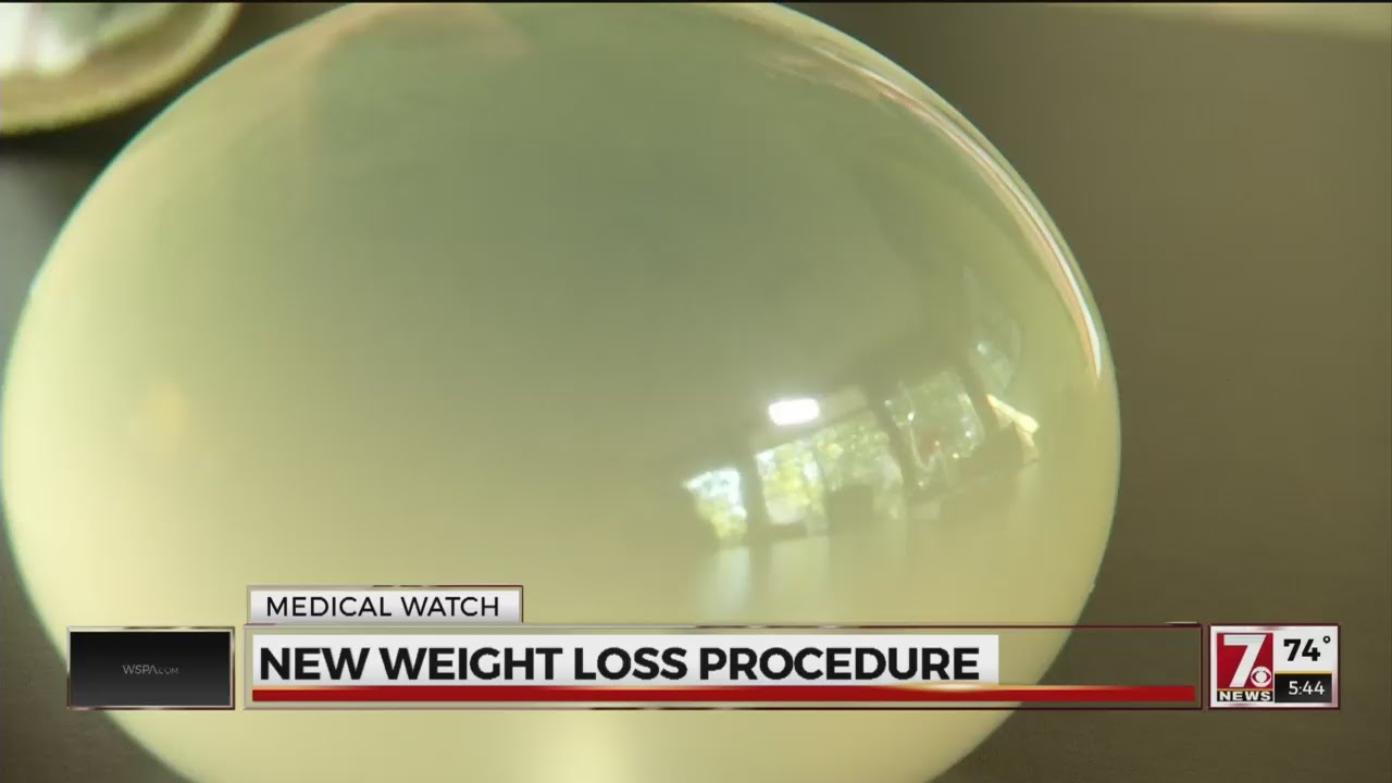 Balloon Weight Loss Procedure New Non Surgical Alternative Youtube