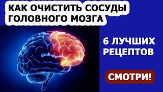 ЧИСТКА СОСУДОВ Как очистить сосуды головного мозга Народные рецепты