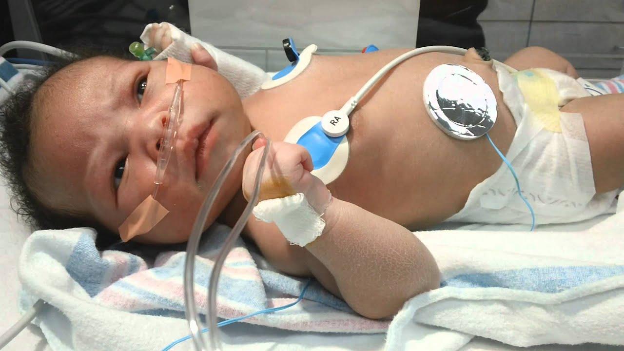 Neonatal Seizures - YouTube