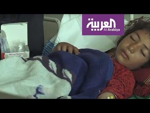 كشر .. تقدم حوثي على جثث النساء والأطفال  - 21:53-2019 / 3 / 11