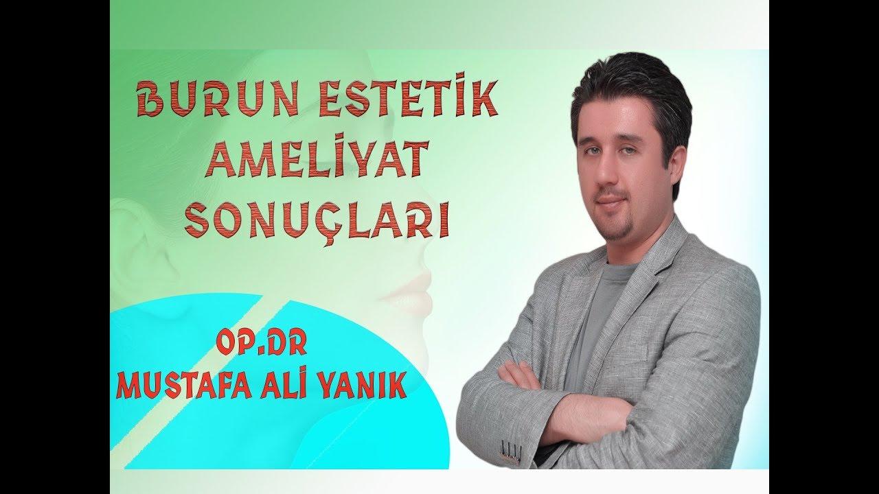 Dr. Mustafa Ali Yanık Şikayet Li Burun Estetik Önce Sonra - YouTube