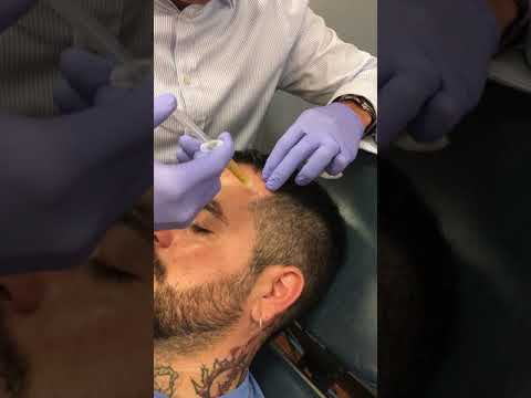 Dr. Raval demonstrates a PRFM injection for thinning hair