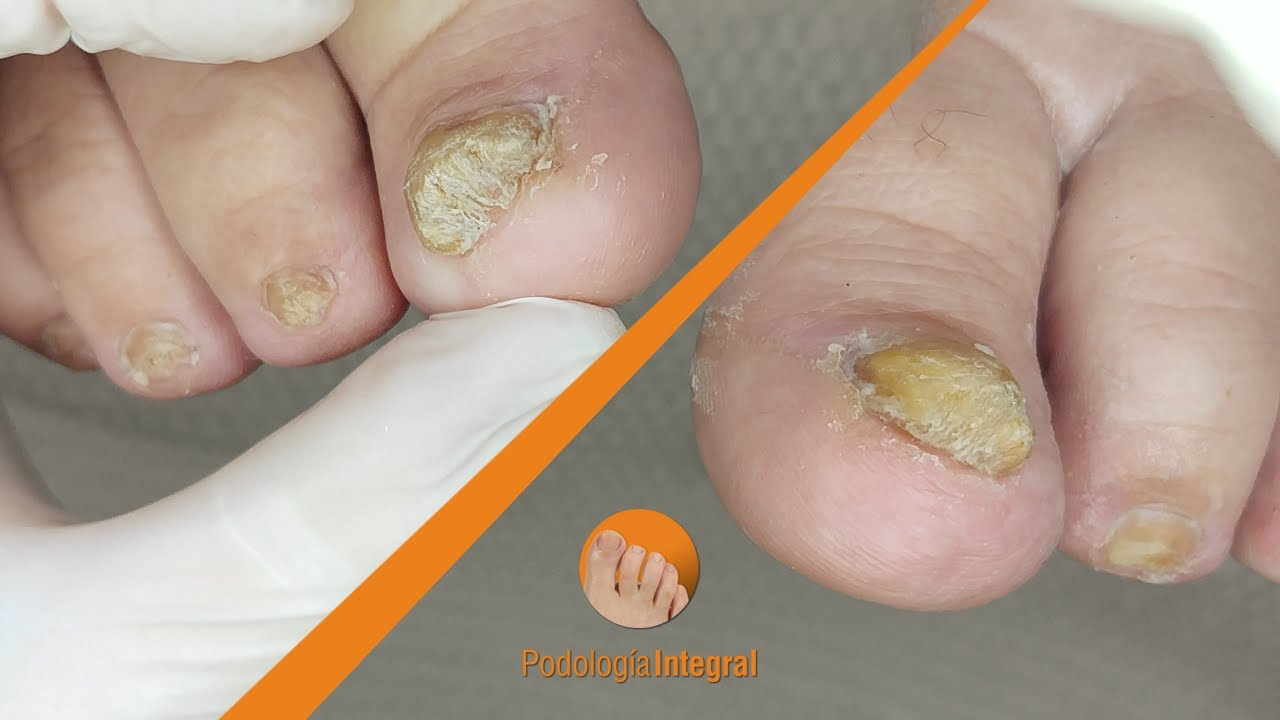 Nail fungus cleaning #podologiaintegral