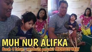 Balita Penderita Penyakit Microcephaly | iNews Sulbar | 28-09-2018.
