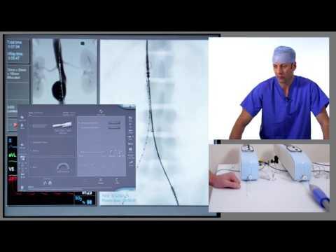 EVAR (Endovascular Aneurysm Repair)