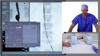 Video EVAR (Endovascular Aneurysm Repair) download MP3, 3GP, MP4, WEBM, AVI, FLV Juli 2018