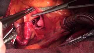 Aortic Valve Replace - Dr. Chris Feindel