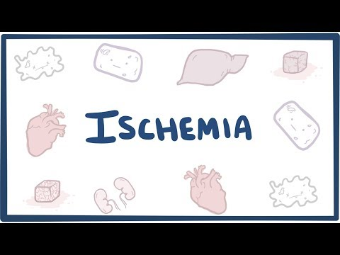 Ischemia - An Osmosis Preview