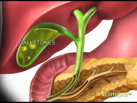 cholecystits cholelithiasis Gallbladder pain is generally caused by biliary colic, cholecystitis, gallstones, pancreatitis, and ascending cholangitis treatment for gallbladder pain depends on.
