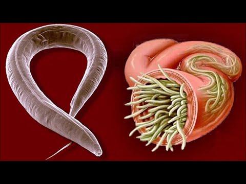 Natürliche Wege zur Beseitigung von Parasiten oder Darmwürmern