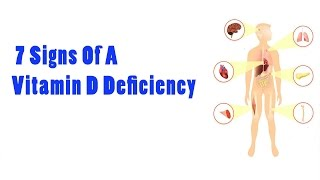 7 Signs Of A Vitamin D Deficiency | Health Vlogger