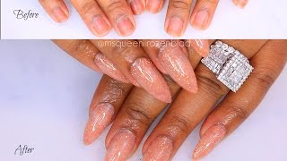 NUDE GLITTER ACRYLIC NAILS - QUEENII ROZENBLAD