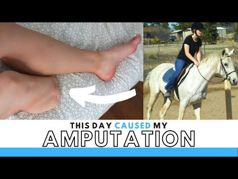My Amputation Accident: Horseback Riding Fall That Cost Me My Leg...