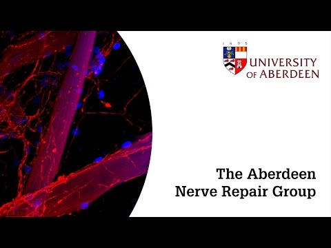 The Aberdeen Nerve Repair Group