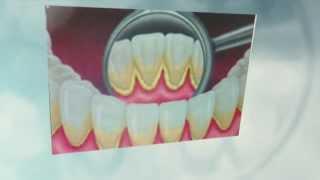 Стоматология Новый Уренгой - Удаляем зубной камень в ЮНИДЕНТ(Стоматология Новый Уренгой - Удаляем зубной камень в ЮНИДЕНТ http://unidentstom.ru. Один из способ предупреждения..., 2013-10-26T08:18:20.000Z)