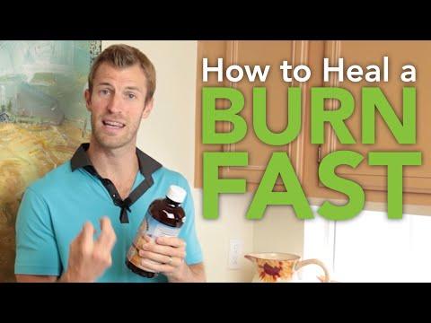 How to Heal a Burn Fast