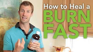 How to Heal a Burn Fast