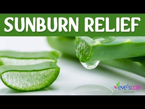 Quick sunburn relief - Sunburn treatment and remedies