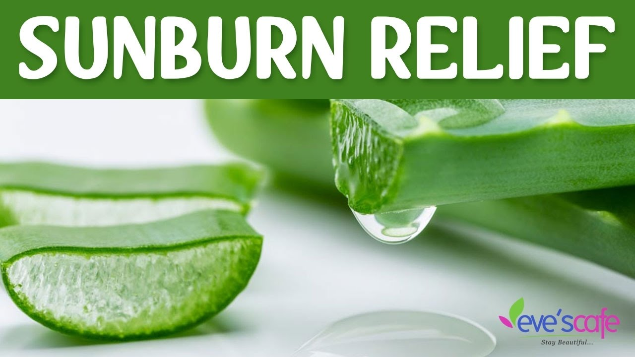 pictures How To Treat Sunburn