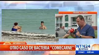 Bacteria 'comecarne' cobró la vida de otra persona en Florida, EEUU
