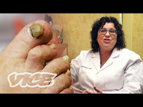 meet-a-toenail-fungus-expert