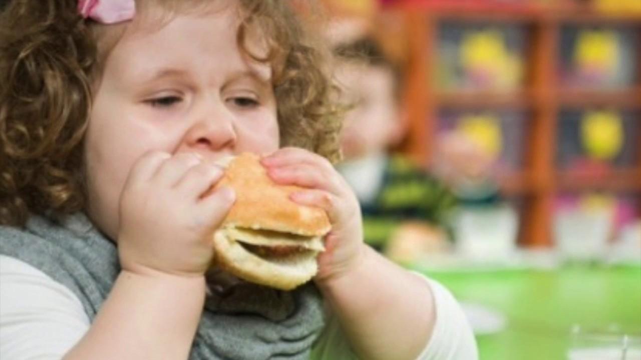 3 Cara Mengurangi Obesitas Anak