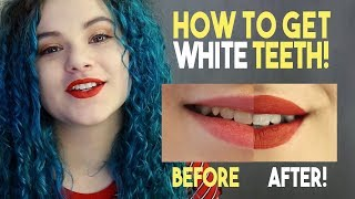 How To Get White Teeth!