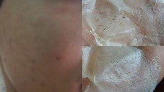 Pernas encravados pretos nas pontos pêlos
