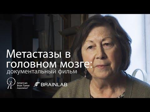 Метастазы в головном мозге: документальный фильм | Механизм развития и перспективные методы лечения