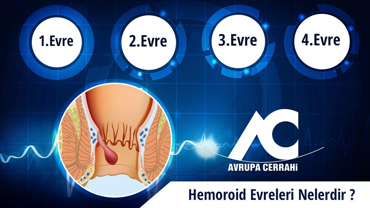 Hemoroid ( Basur ) Nedir