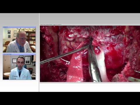 Resection of Pineal Region Tumors: Pearls and Pitfalls