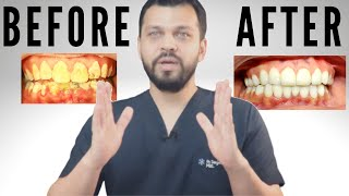 Dentist Explains Smile Makeover | Cost? | How Many? | What type of Crowns ?
