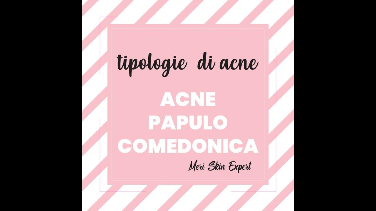 Che cos'è l'acne papulo comedonica | Meri Skin Expert | Viva Benessere Torino
