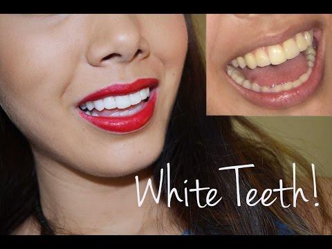 ♥Want white teeth? Here's the secret!♥