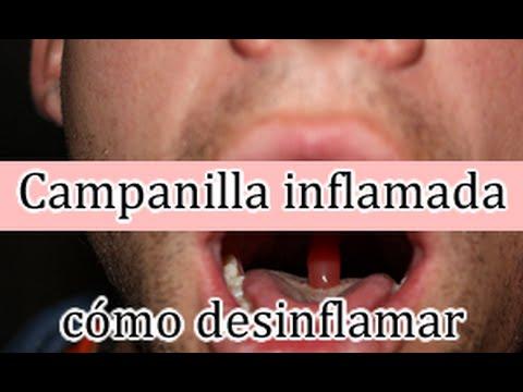 Inflamacion de la campanilla de la garganta causas