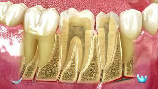 Odontologia Carvalho - Endodontia