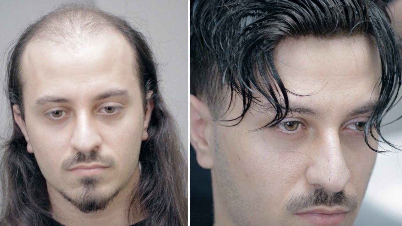 Protez Saç Muhteşem Değişim - Hair Replacement