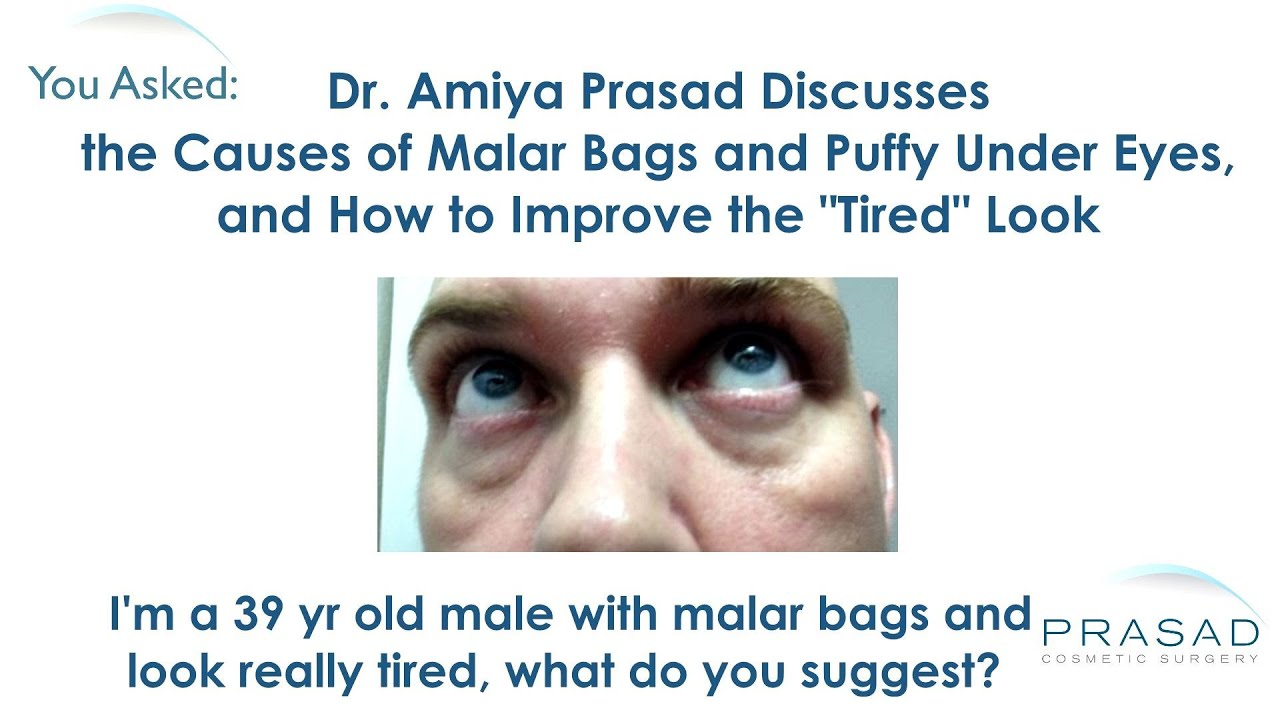 The Causes of Malar Bags and Puffy Eyes and How they Can Be