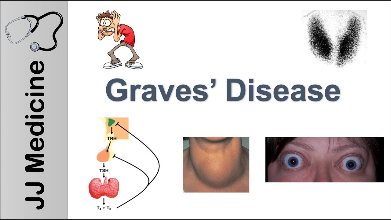 Graves Disease And Graves Ophthalmopathy Signs Symptoms Diagnosis And Treatment Youtube