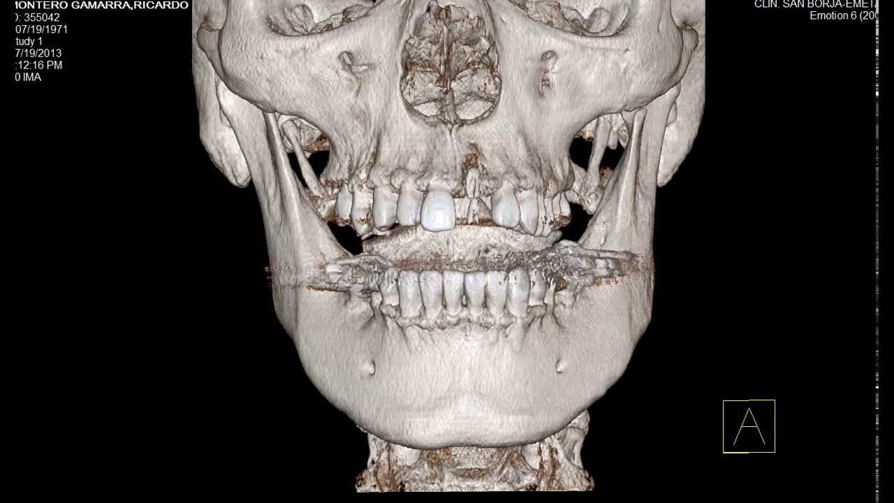 Mi Tomografia Dental Funnycat Tv
