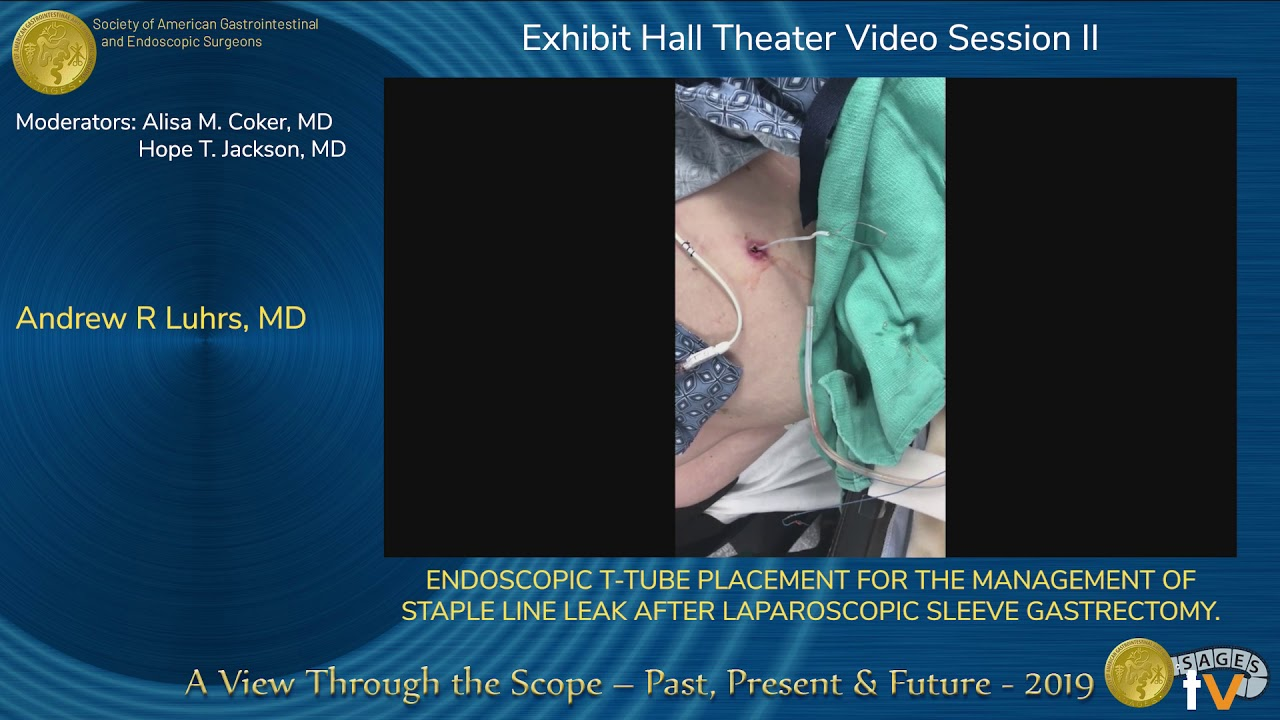 Download Endoscopic T-Tube Placement for the Management of Staple Line Leak...
