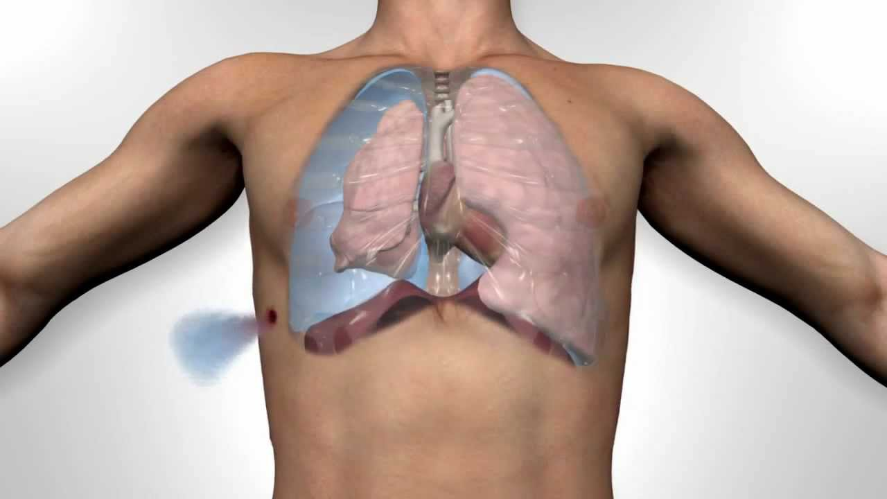 Russell Chest Seal Open Pneumothorax - YouTube