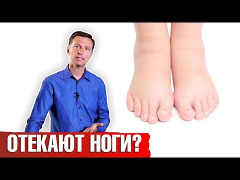 Отекают ноги: что делать? Как лечить отеки ног?