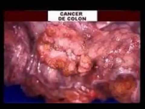 cancer de colon recto youtube. Black Bedroom Furniture Sets. Home Design Ideas