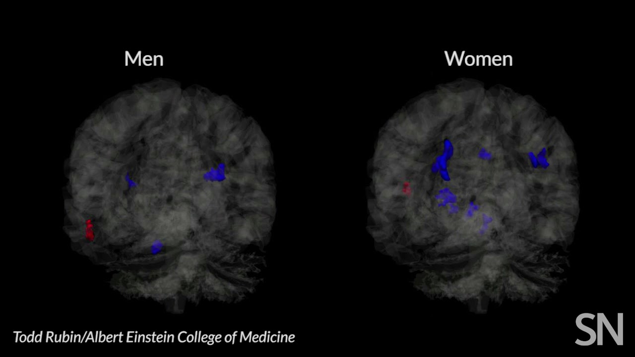 Headers Linked To Memory Deficit In >> Soccer Headers May Hurt Women S Brains More Than Men S Science News