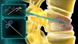 iVas Procedure Animation
