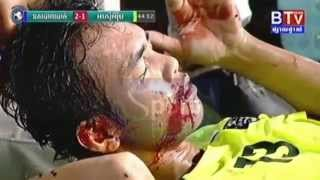 ការប៉ះទង្គិចគ្នាកំឡុងនៃកាប្រគួត Police FC vs AEU 23 Sep 2015
