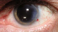 hqdefault - Eye Complications Caused Diabetes