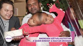 Sikeresen szétválasztották a sziámi ikreket a magyar orvosok
